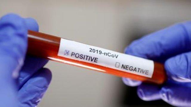 Koronavirusa yoluxanların sayı açıqlandı -Yenə ölənlər var